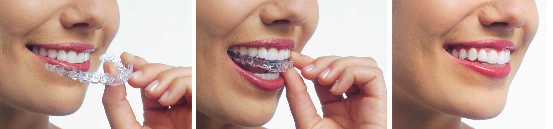 Invisalign Aligner at Northeast Orthodontic Specialists in Loveland Cincinnati OH
