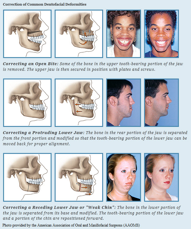 Surgical Orthodontics Northeast Orthodontic Specialists