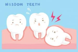 Wisdom Teeth Cincinnati OH